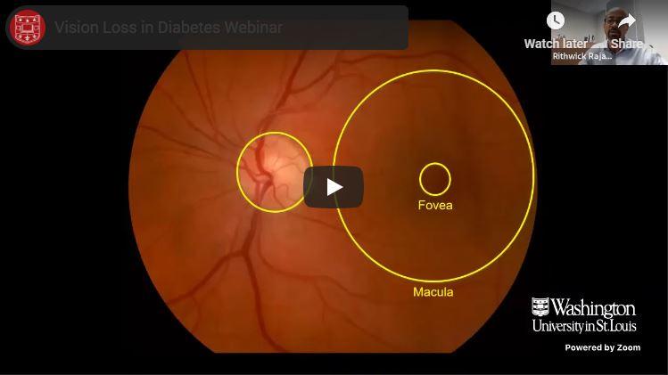 Vision Loss in Diabetes